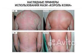 Болезни кожи неясной этиологии псориаз